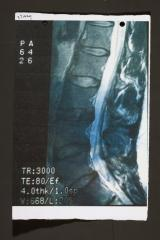 tr3000